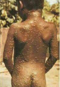 monkeypox affected patients