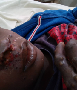 picture of monkeypox virus affected patients